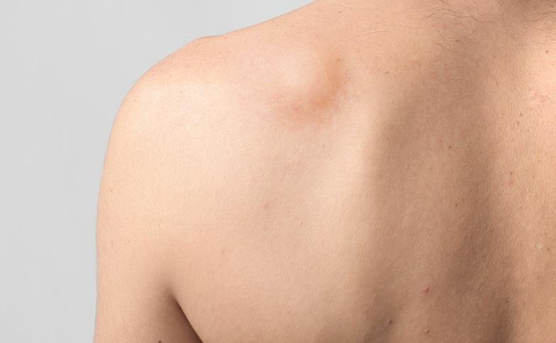 Lipomas Treatment Naturally