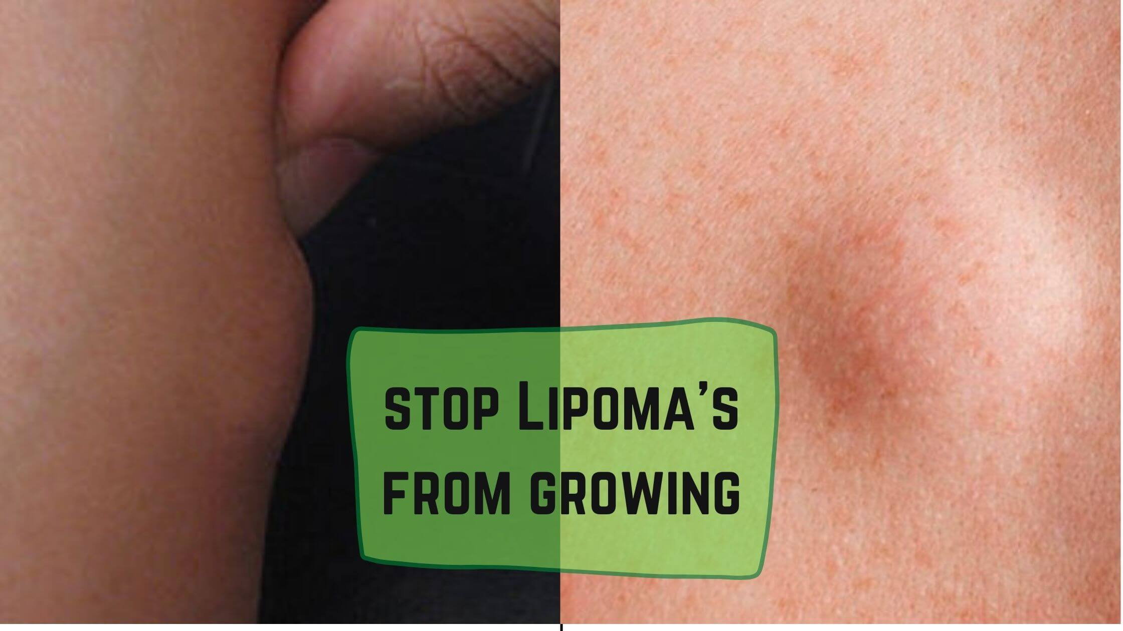 How do you stop Lipoma's from growing?