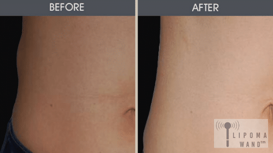 Lipoma Wand Therapy For Lipoma Removal
