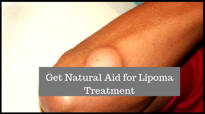 Get Natural Aid for Lipoma Treatment