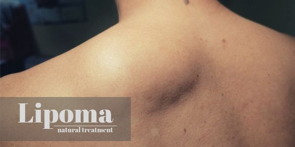 Lipoma Natural Treatment