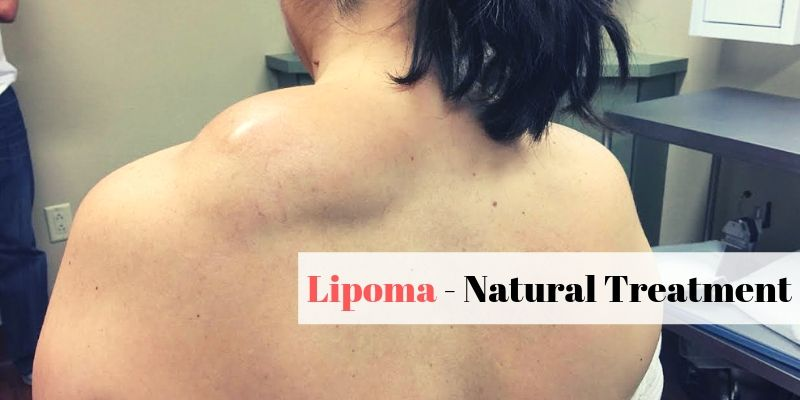 Natural Lipoma Treatment