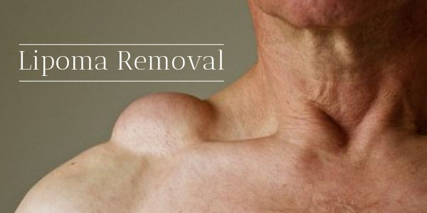 Home Treatment for Lipoma