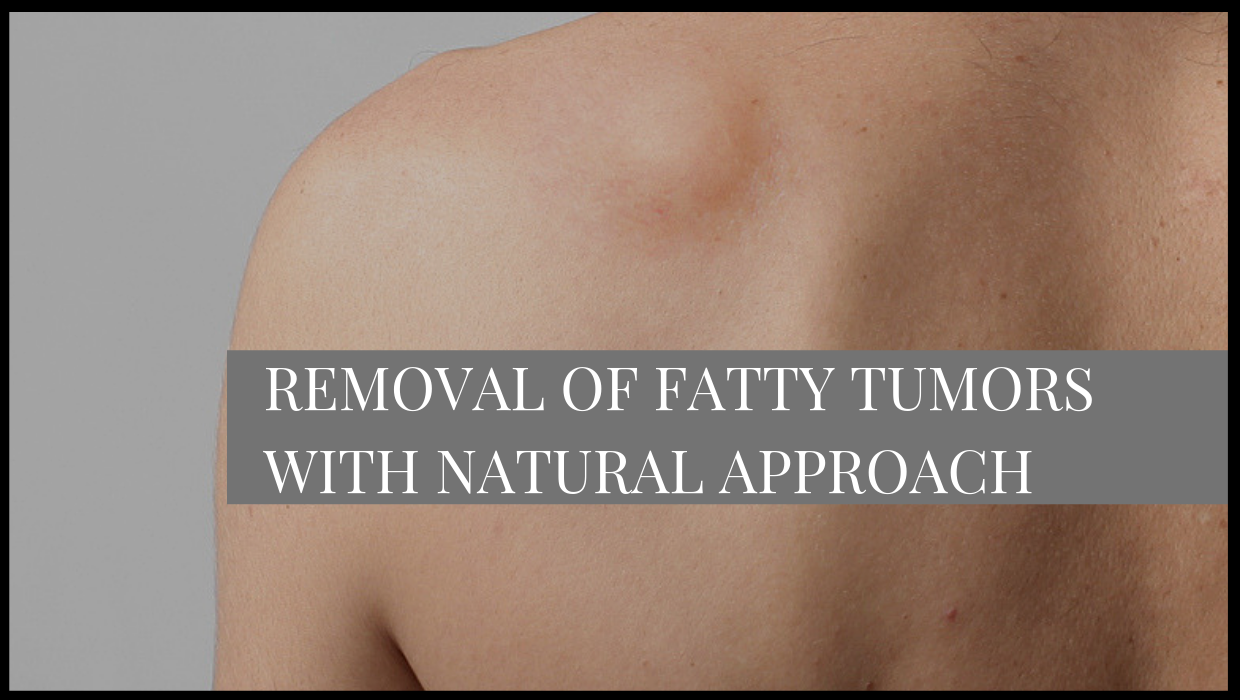 Removal of Fatty Tumors with Natural Approach
