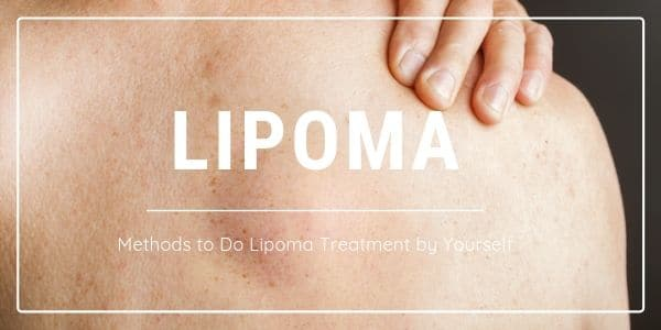 Lipoma Treatment by Yourself