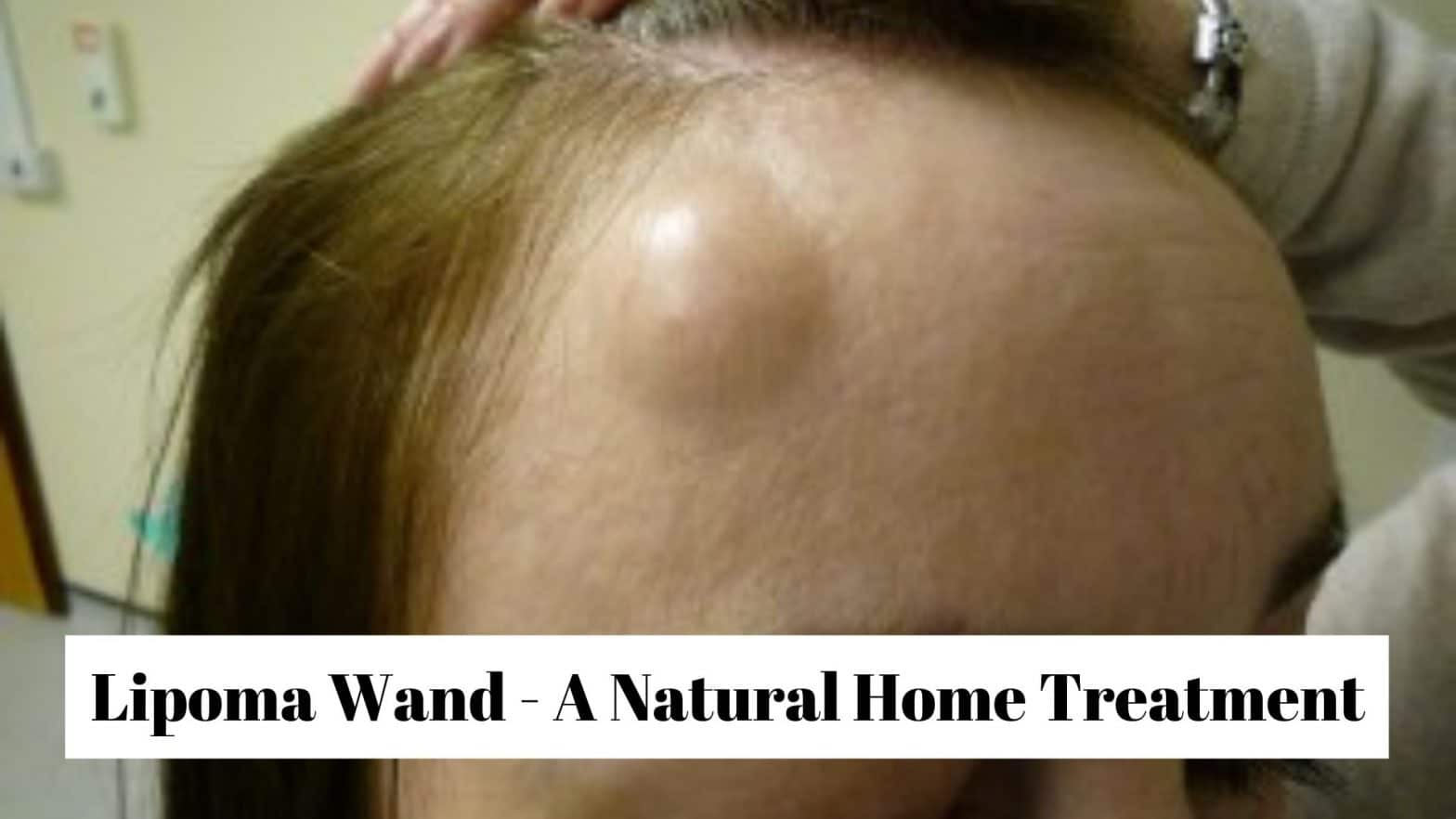 Lipoma Wand - A Natural Home Treatment