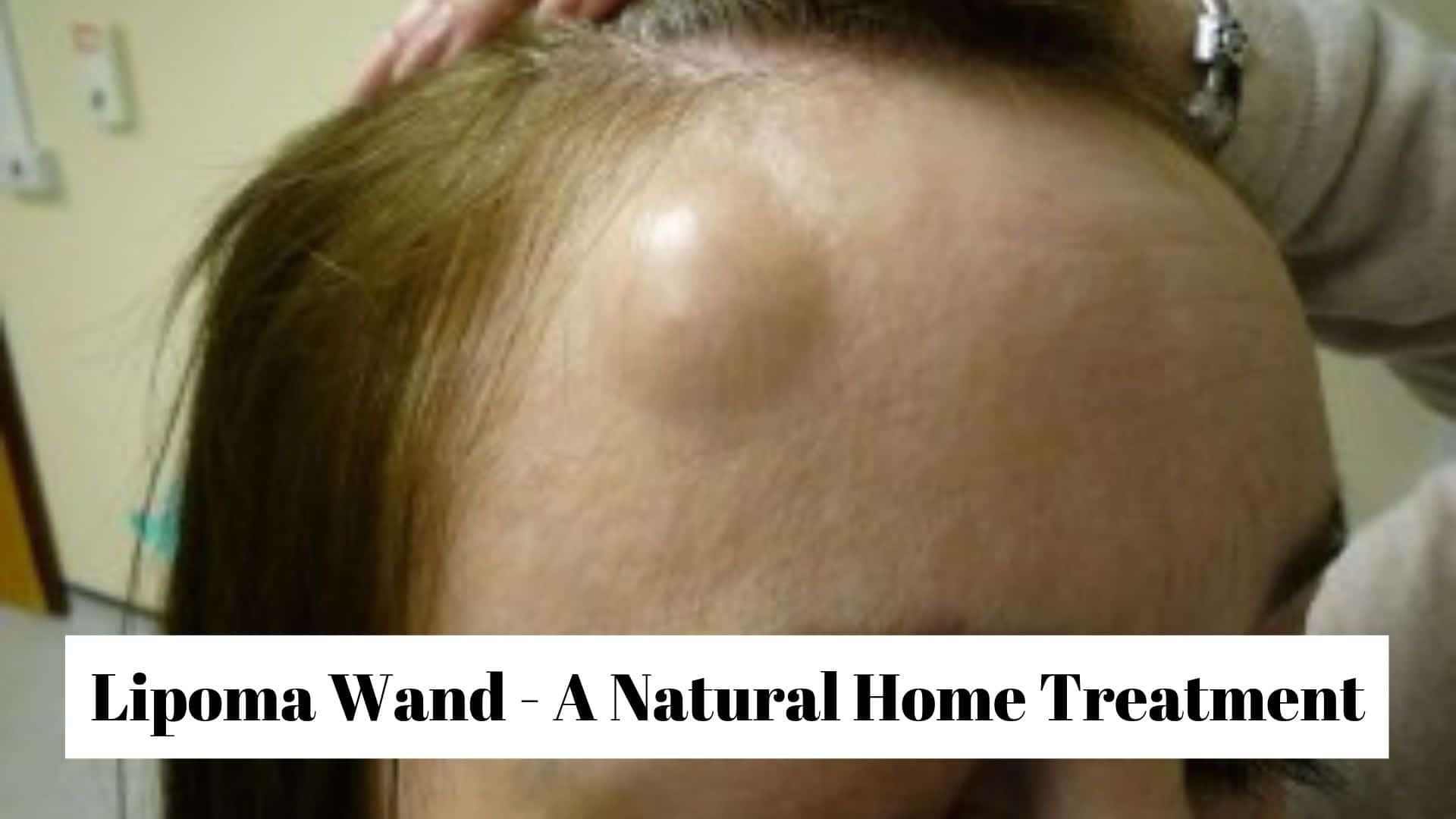 Lipoma Wand - A Natural Home Treatment