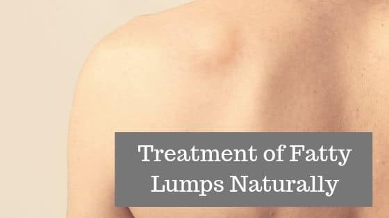 Lipoma Treatment