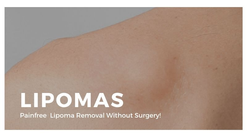 Lipoma Removal Without Surgery