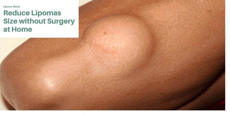 Lipoma natural treatment
