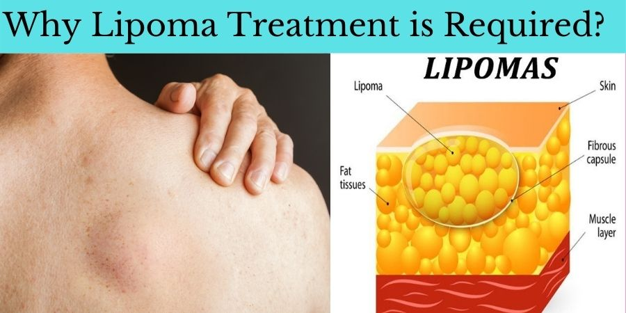 Why Lipoma Treatment is required
