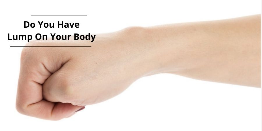 Know About the Lump on Your Body