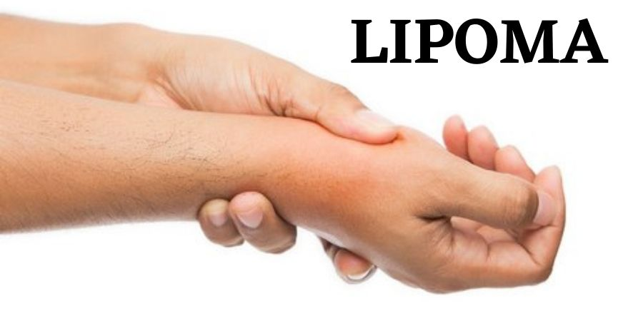 Lipoma: What is it, Causes, and Lipoma Removal