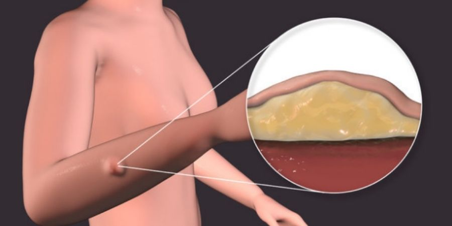 Solution for Lipoma Removal