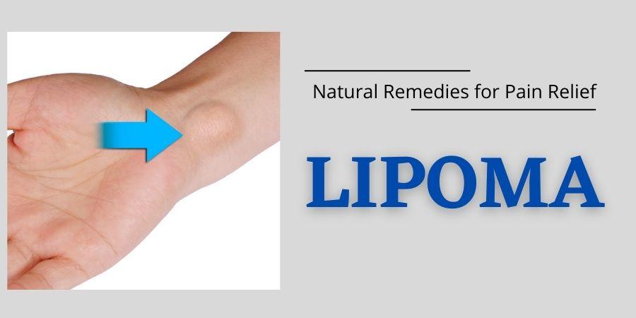 Get Lipoma Treatment at Home