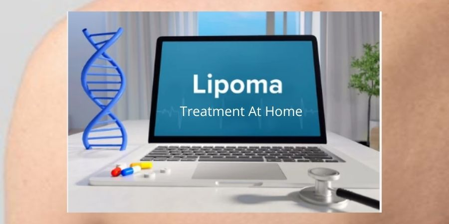 Lipoma Treatment at Home
