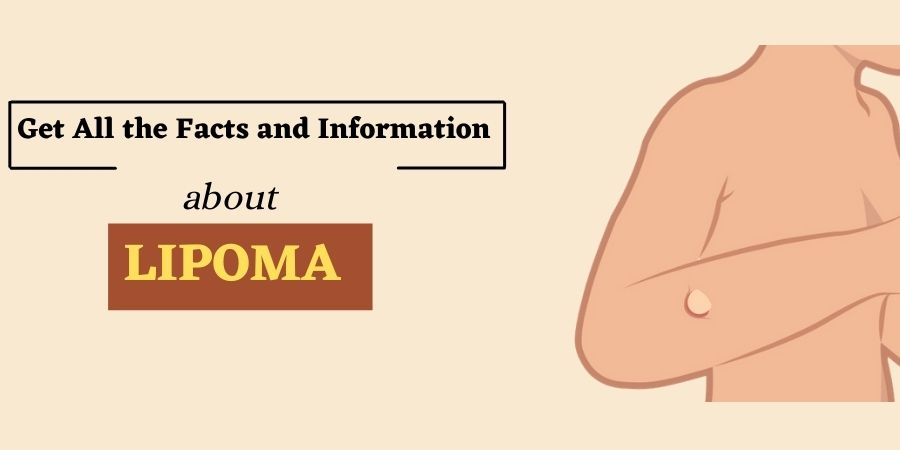 Information About Lipoma Removal