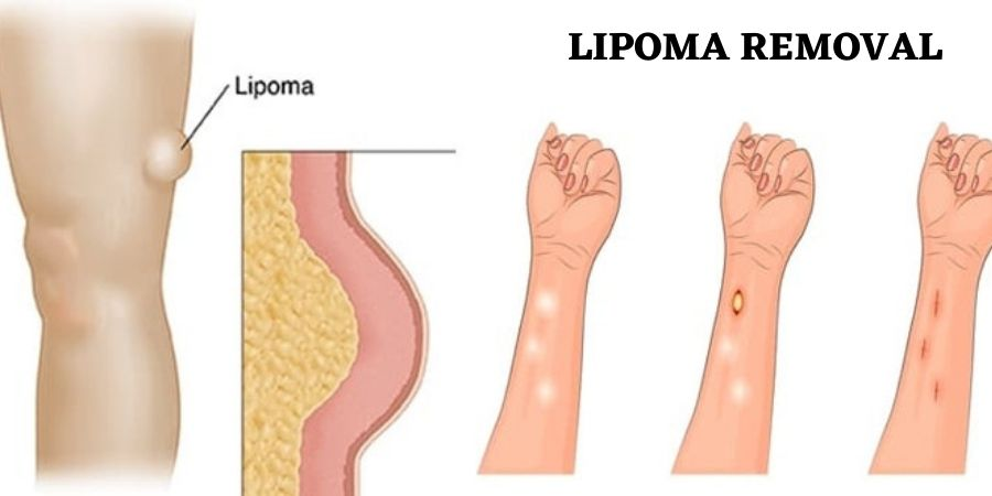 Natural Treatment Remedies for Fatty lumps