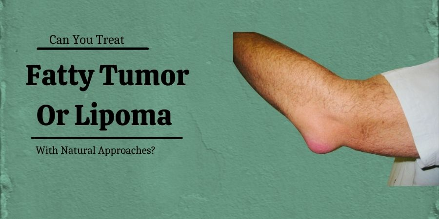 Lipoma Treatment Approaches