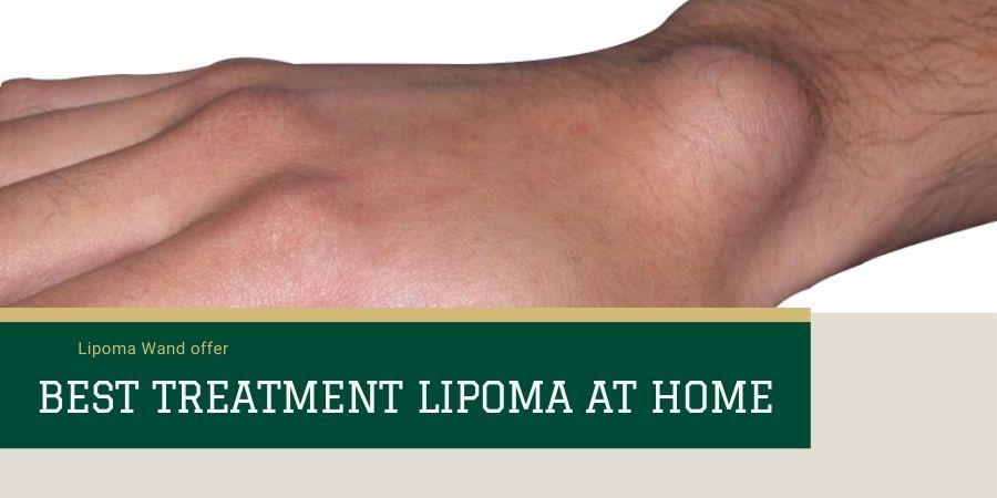 Best Lipoma Treatment