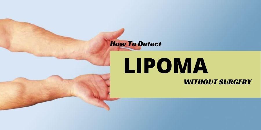 Get a Safe Lipoma Treatment
