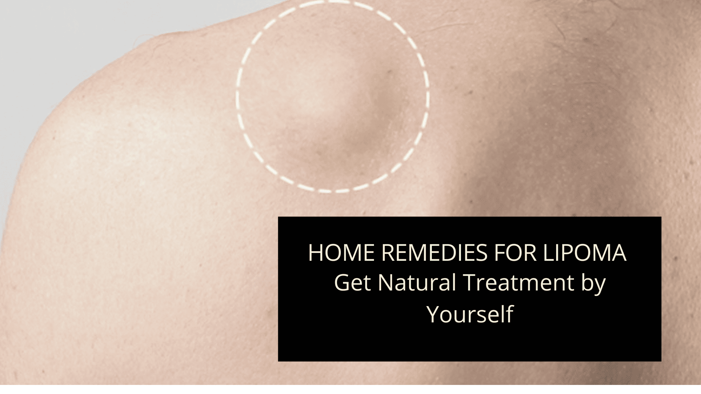 Home Remedies for Lipoma – Get Natural Treatment by Yourself